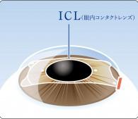 ICL(眼内コンタクトレンズ)のレンズを入れた眼