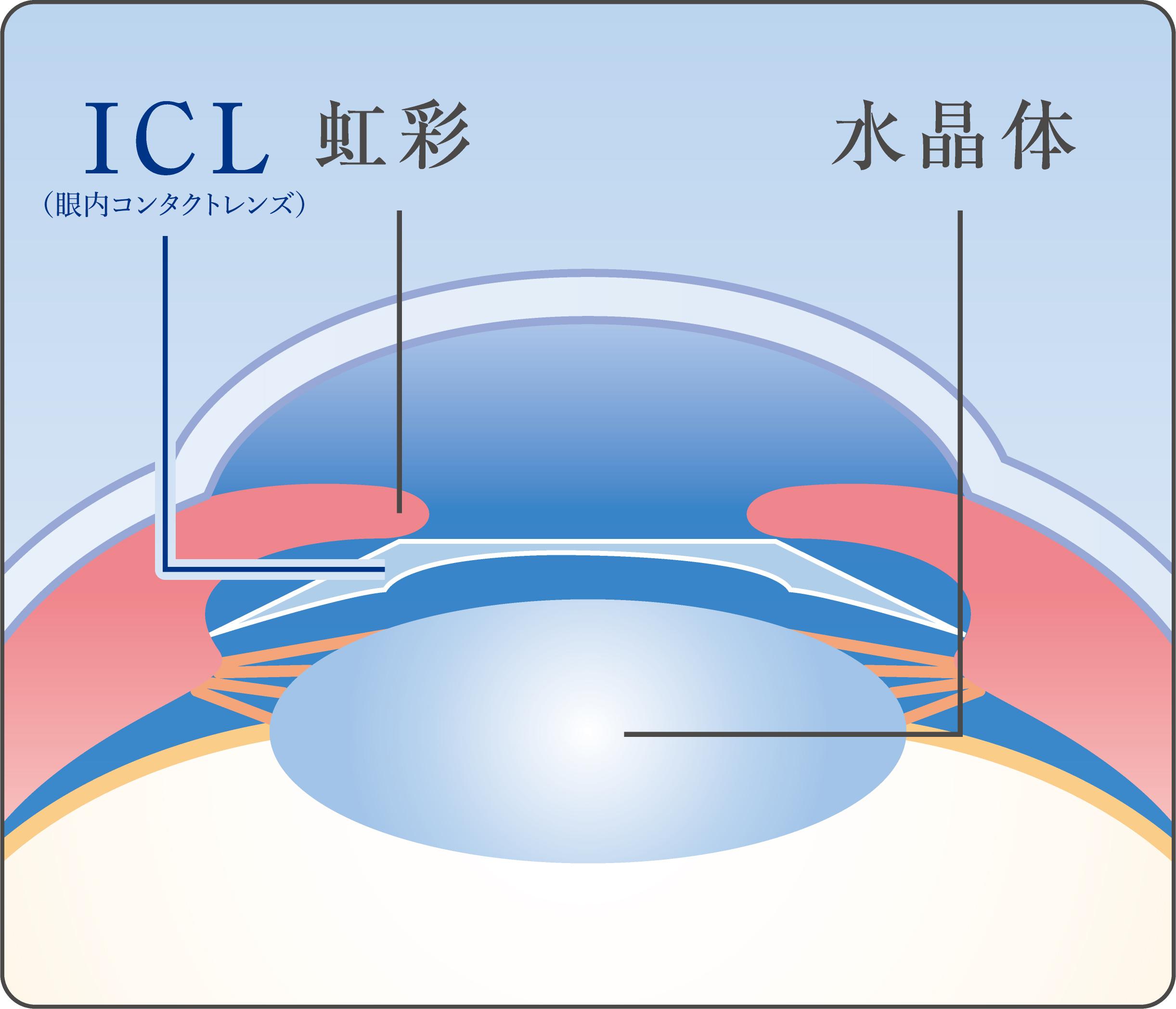 【画像】近視に朗報!レーシックより安全新技術「ICL手術」