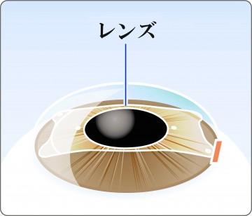 眼内コンタクトレンズを入れた眼
