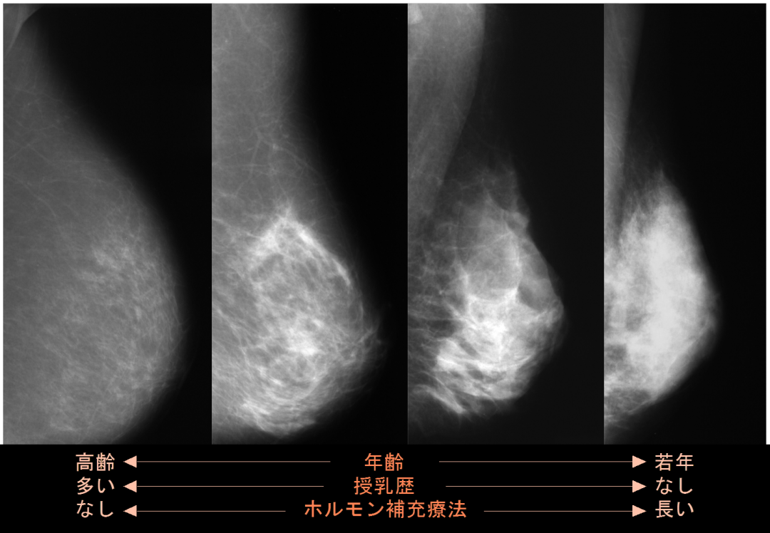 加齢による乳腺の変化