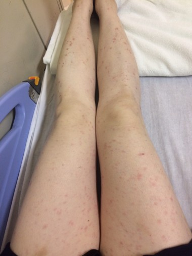 足全体に広がる湿疹