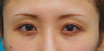 眼瞼下垂アフター
