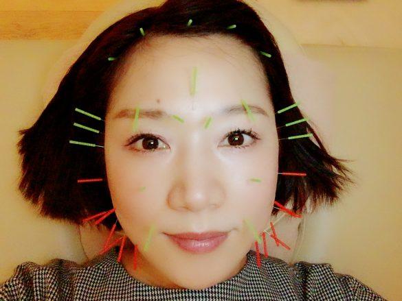美容鍼(刺し終わり)
