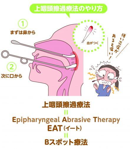 上咽頭擦過療法の仕組み