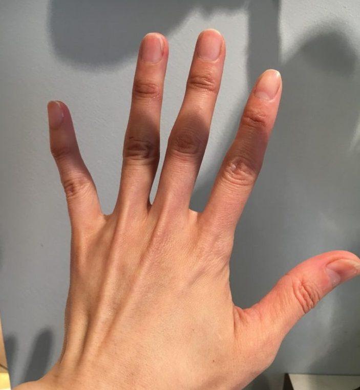 手先から肘まで効果を実感