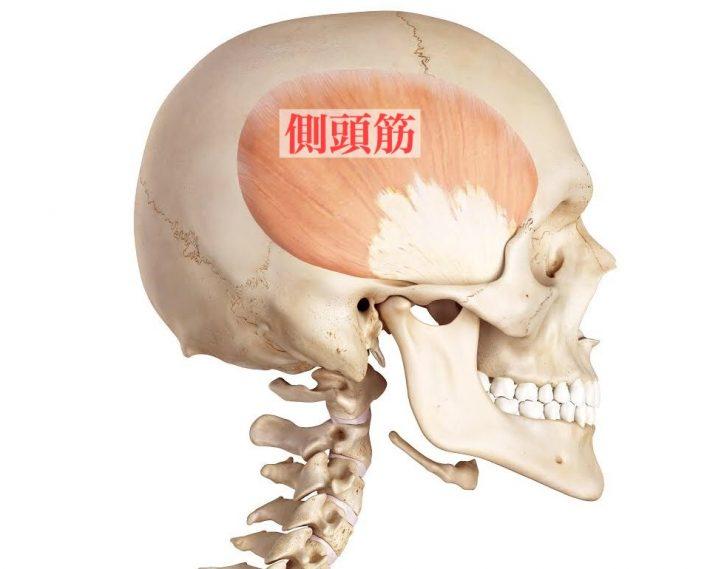 頭痛の原因は側頭筋だった