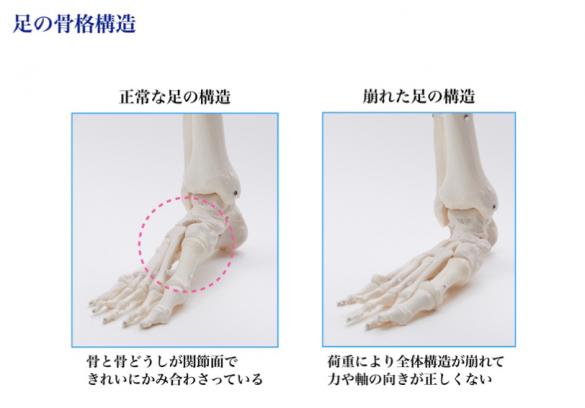 足の骨格構造