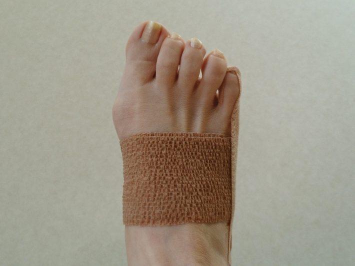 足 の 小指 違和感 足の指、小指が内側に曲がる(内反小趾)、外反母趾の反対側が痛い、...
