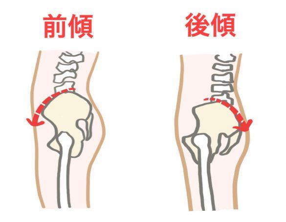 ヒップリフトのコツ、骨盤前傾・後傾の図