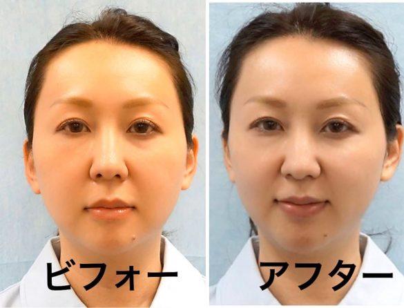 (画像:麹町皮ふ科 形成外科クリニック公式Facebookより)