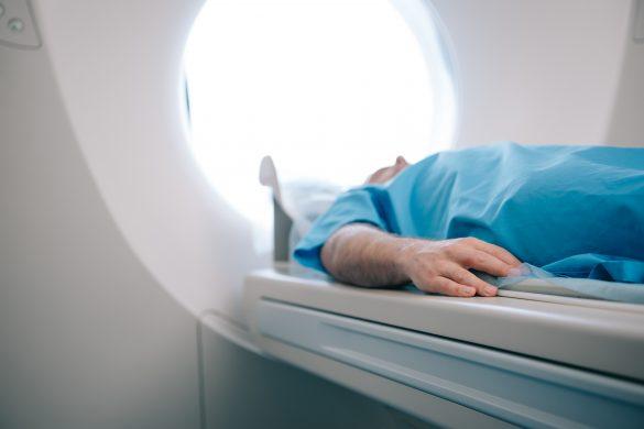 街医者に誤診され、3日間も脳梗塞を放置
