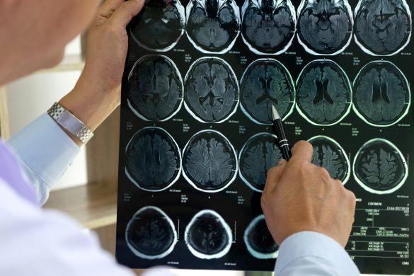 脳梗塞の原因が判明、告げられた病名は…