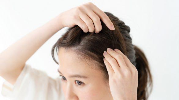 髪の毛・分け目・生え際・女性
