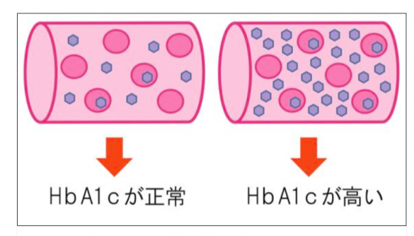 ヘモグロビン2